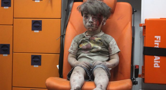 A Wounded Child in Aleppo, shocks the world